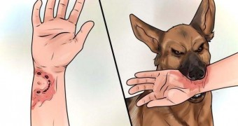 Что делать если укусила собака ?